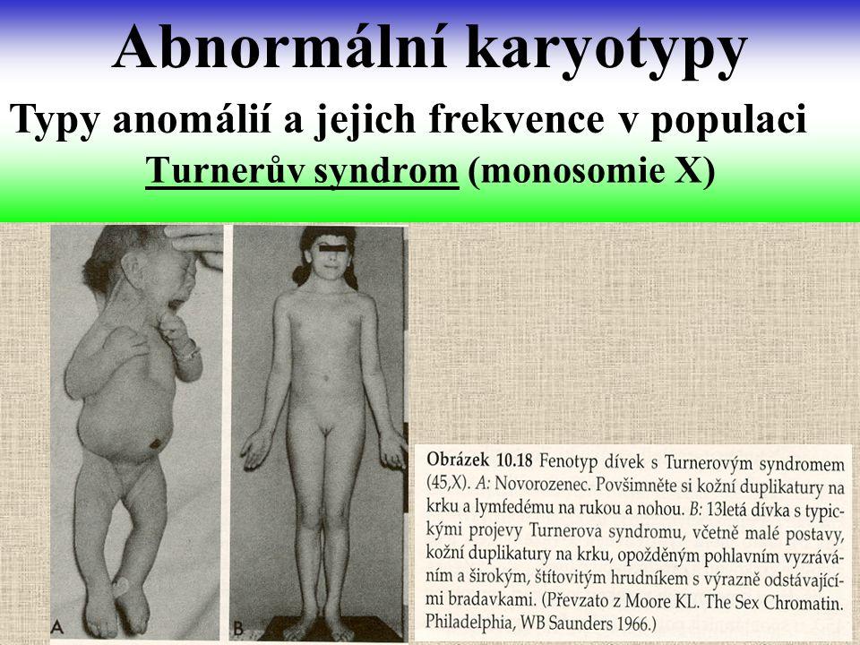 Turnerův syndrom (monosomie X) Abnormální karyotypy Typy anomálií a jejich frekvence v populaci