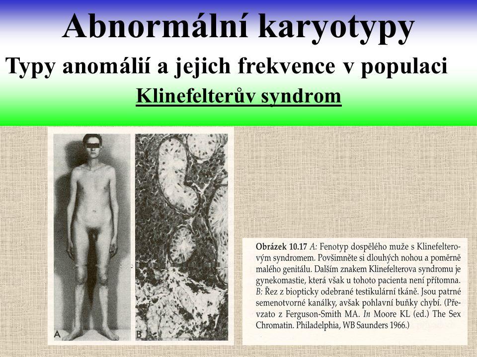 Klinefelterův syndrom Abnormální karyotypy Typy anomálií a jejich frekvence v populaci