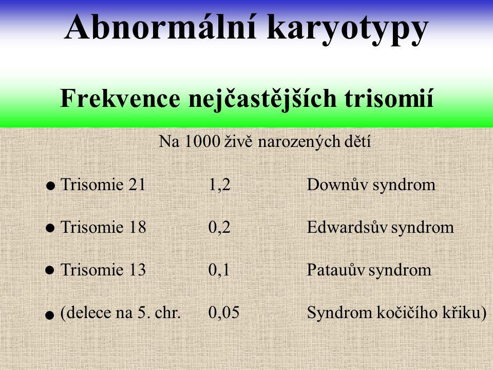 Na 1000 živě narozených dětí Trisomie 211,2Downův syndrom Trisomie 180,2Edwardsův syndrom Trisomie 130,1Patauův syndrom (delece na 5. chr.0,05Syndrom