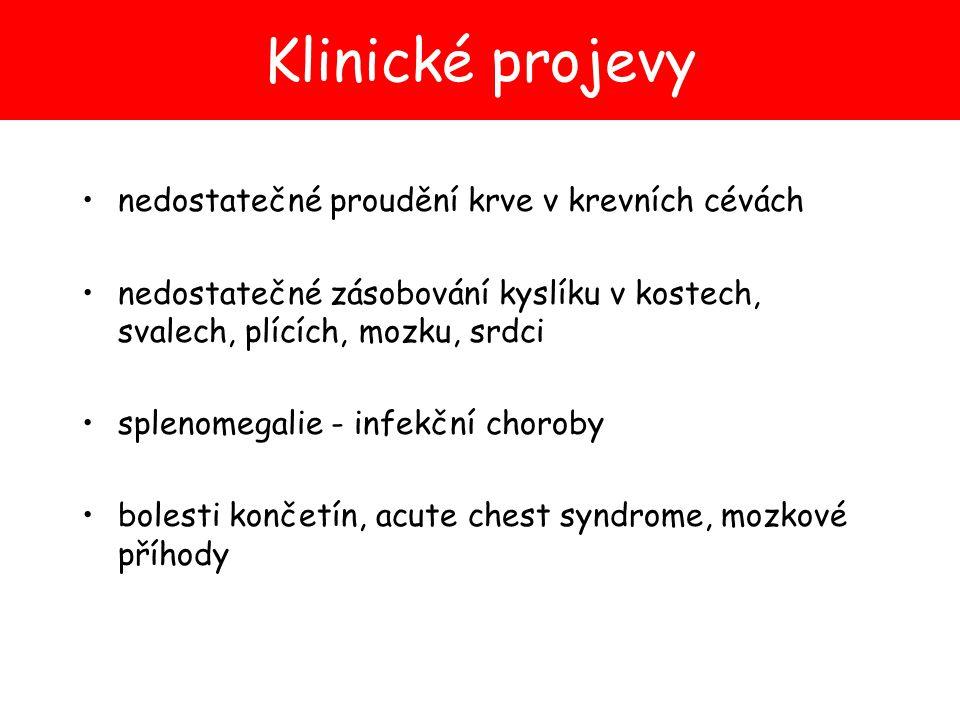 Klinické projevy nedostatečné proudění krve v krevních cévách nedostatečné zásobování kyslíku v kostech, svalech, plících, mozku, srdci splenomegalie