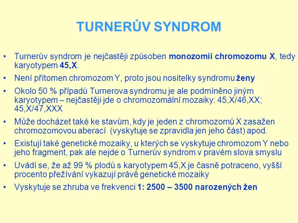 Turnerův syndrom je nejčastěji způsoben monozomií chromozomu X, tedy karyotypem 45,X. Není přítomen chromozom Y, proto jsou nositelky syndromu ženy Ok