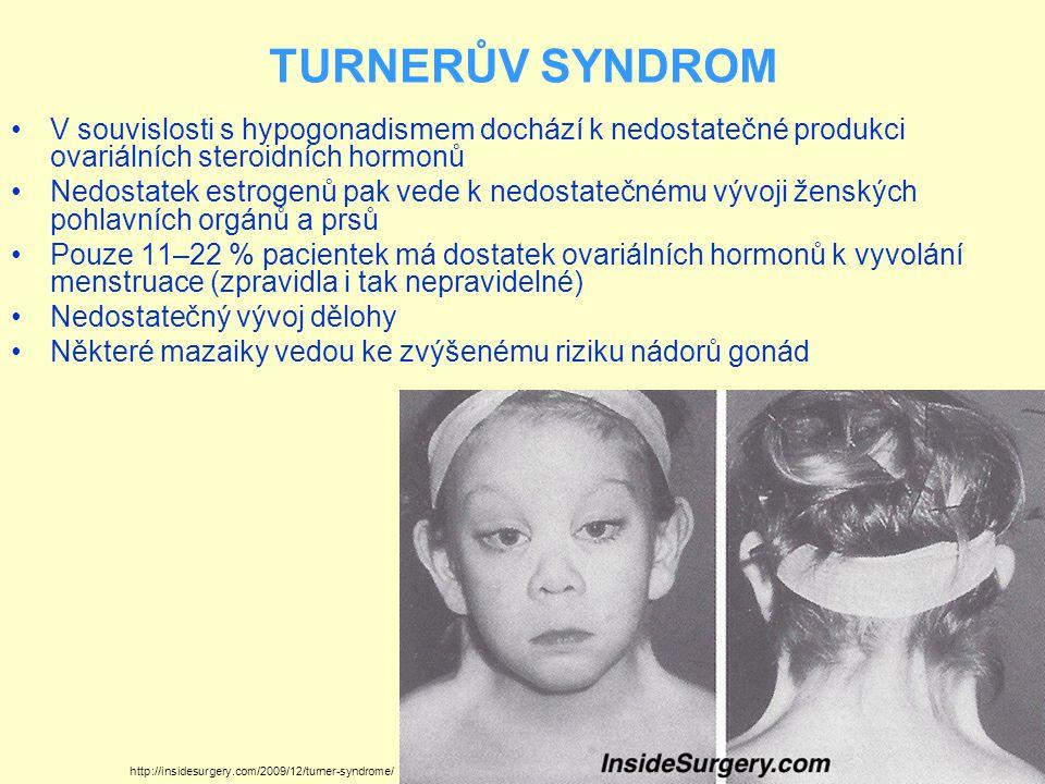 TURNERŮV SYNDROM V souvislosti s hypogonadismem dochází k nedostatečné produkci ovariálních steroidních hormonů Nedostatek estrogenů pak vede k nedost
