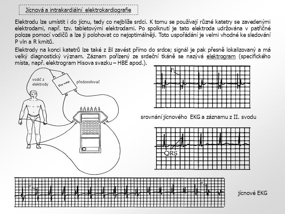 Jícnová a intrakardiální elektrokardiografie Elektrodu lze umístit i do jícnu, tedy co nejblíže srdci. K tomu se používají různé katetry se zavedenými