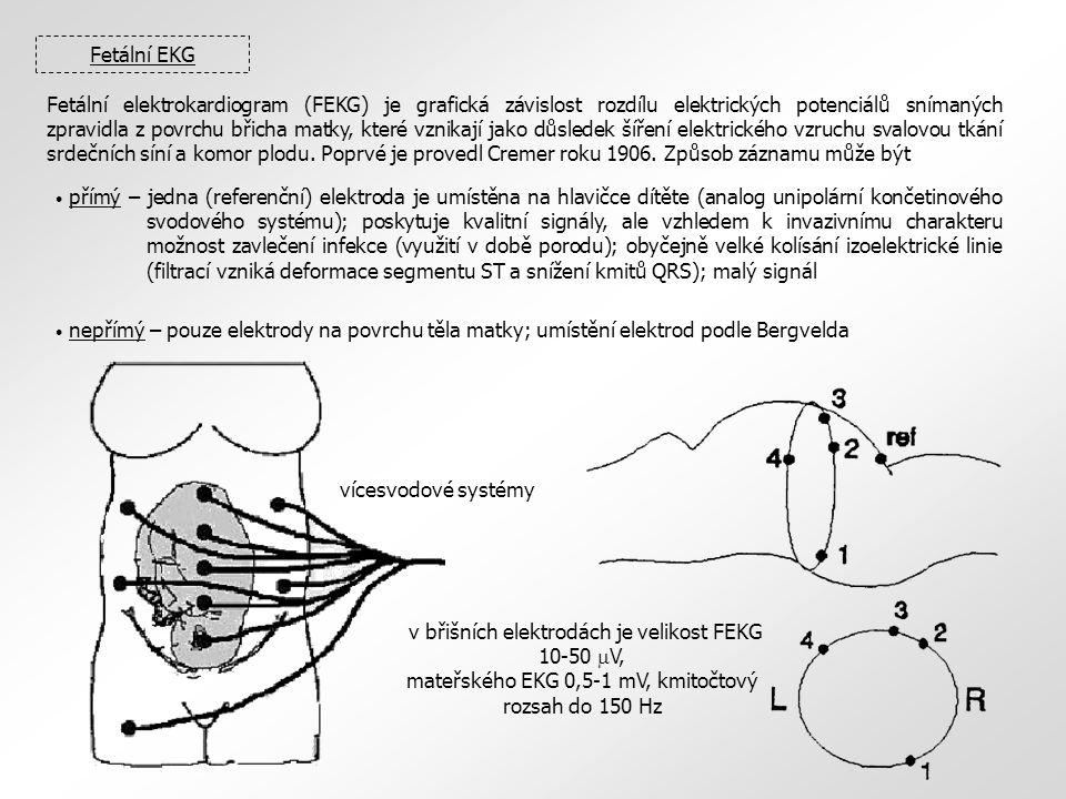 Fetální EKG Fetální elektrokardiogram (FEKG) je grafická závislost rozdílu elektrických potenciálů snímaných zpravidla z povrchu břicha matky, které vznikají jako důsledek šíření elektrického vzruchu svalovou tkání srdečních síní a komor plodu.