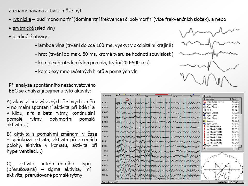Zaznamenávaná aktivita může být rytmická – buď monomorfní (dominantní frekvence) či polymorfní (více frekvenčních složek), a nebo arytmická (sled vln) ojedinělé útvary: - lambda vlna (trvání do cca 100 ms, výskyt v okcipitální krajině) - hrot (trvání do max.