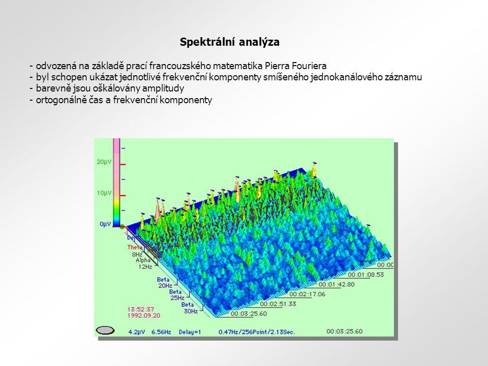 Spektrální analýza - odvozená na základě prací francouzského matematika Pierra Fouriera - byl schopen ukázat jednotlivé frekvenční komponenty smíšenéh