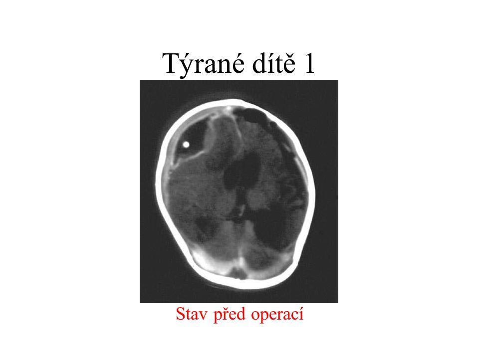 Pneumocefalus příčina - průnik vzduchu frakturou kostí do kalvy vzduch v chronickém subdurálním hematomu