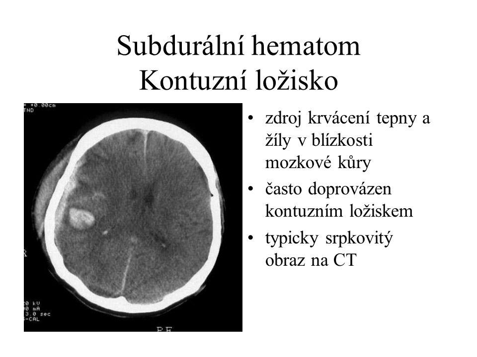Subdurální hematom Kontuzní ložisko zdroj krvácení tepny a žíly v blízkosti mozkové kůry často doprovázen kontuzním ložiskem typicky srpkovitý obraz na CT