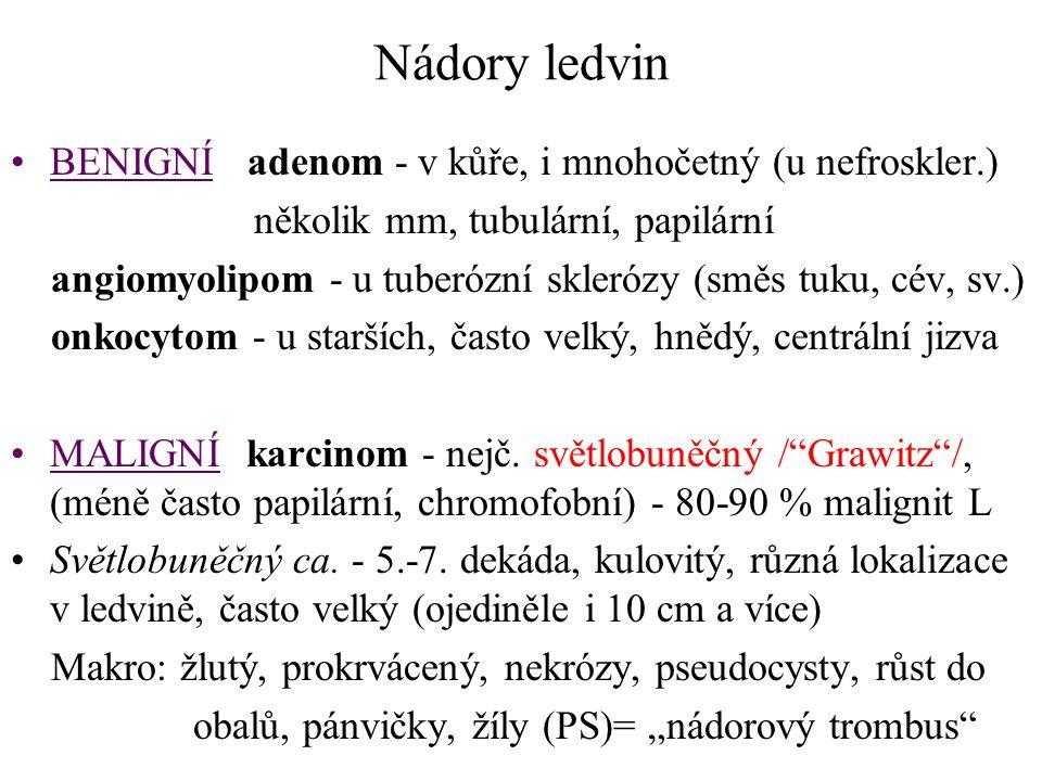 Nádory ledvin BENIGNÍ adenom - v kůře, i mnohočetný (u nefroskler.) několik mm, tubulární, papilární angiomyolipom - u tuberózní sklerózy (směs tuku,
