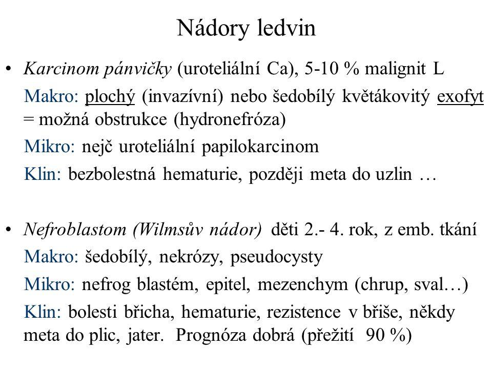 Nádory ledvin Karcinom pánvičky (uroteliální Ca), 5-10 % malignit L Makro: plochý (invazívní) nebo šedobílý květákovitý exofyt = možná obstrukce (hydr