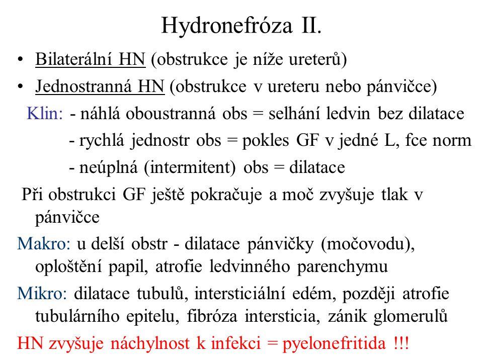Hydronefróza II. Bilaterální HN (obstrukce je níže ureterů) Jednostranná HN (obstrukce v ureteru nebo pánvičce) Klin: - náhlá oboustranná obs = selhán