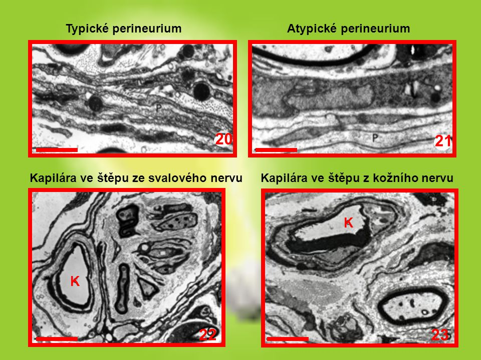 Typické perineuriumAtypické perineurium Kapilára ve štěpu ze svalového nervuKapilára ve štěpu z kožního nervu 20 21 22 23 K K