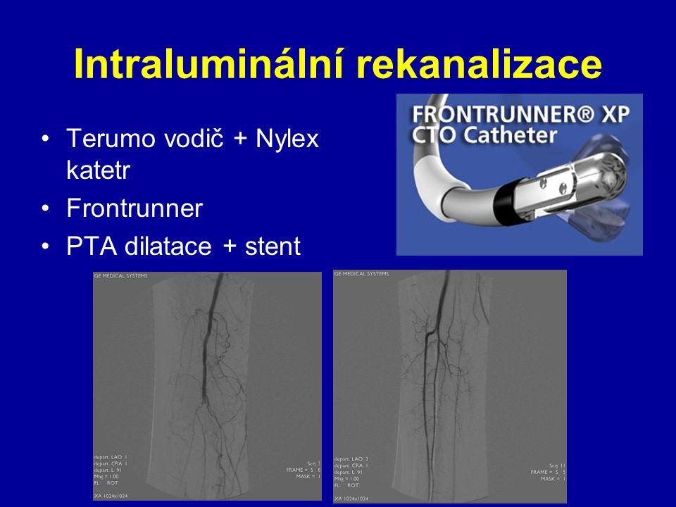 Intraluminální rekanalizace Terumo vodič + Nylex katetr Frontrunner PTA dilatace + stent