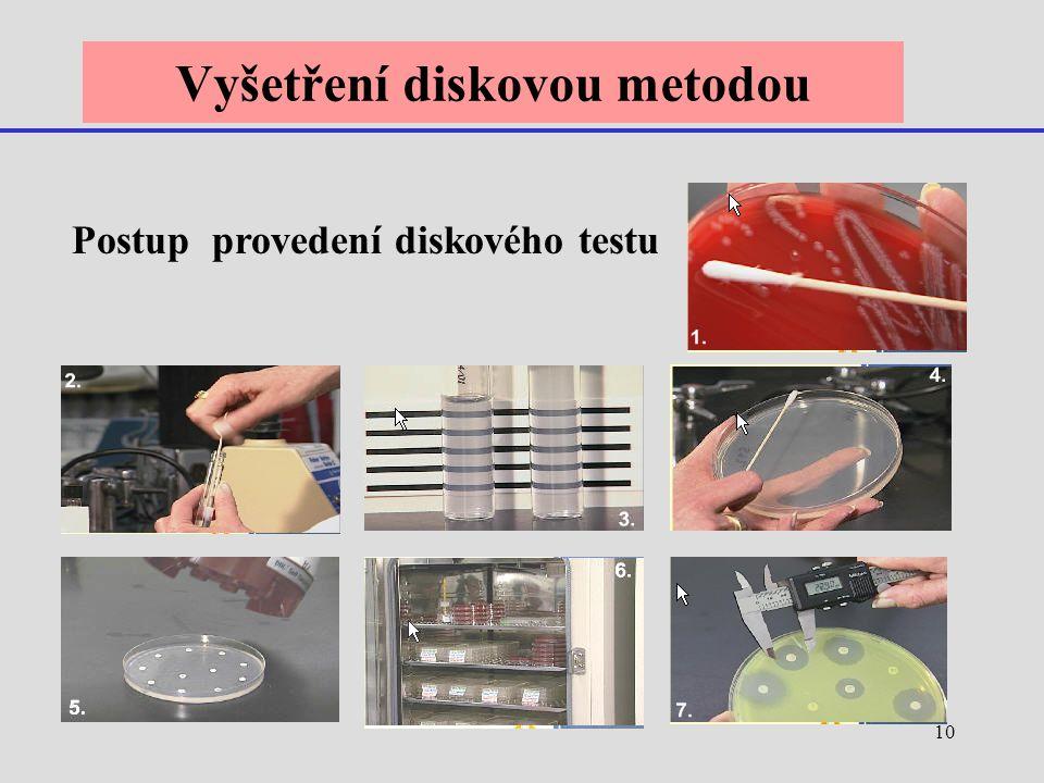 10 Vyšetření diskovou metodou Postup provedení diskového testu