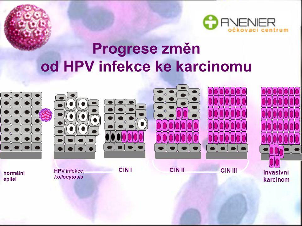 Progrese změn od HPV infekce ke karcinomu invasivní karcinom normální epitel HPV infekce; koilocytosis CIN I CIN II CIN III
