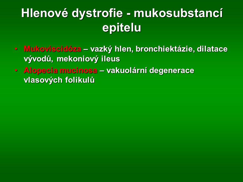 Hlenové dystrofie - mukosubstancí epitelu Mukoviscidóza – vazký hlen, bronchiektázie, dilatace vývodů, mekoniový ileusMukoviscidóza – vazký hlen, bronchiektázie, dilatace vývodů, mekoniový ileus Alopecia mucinosa – vakuolární degenerace vlasových folikulůAlopecia mucinosa – vakuolární degenerace vlasových folikulů
