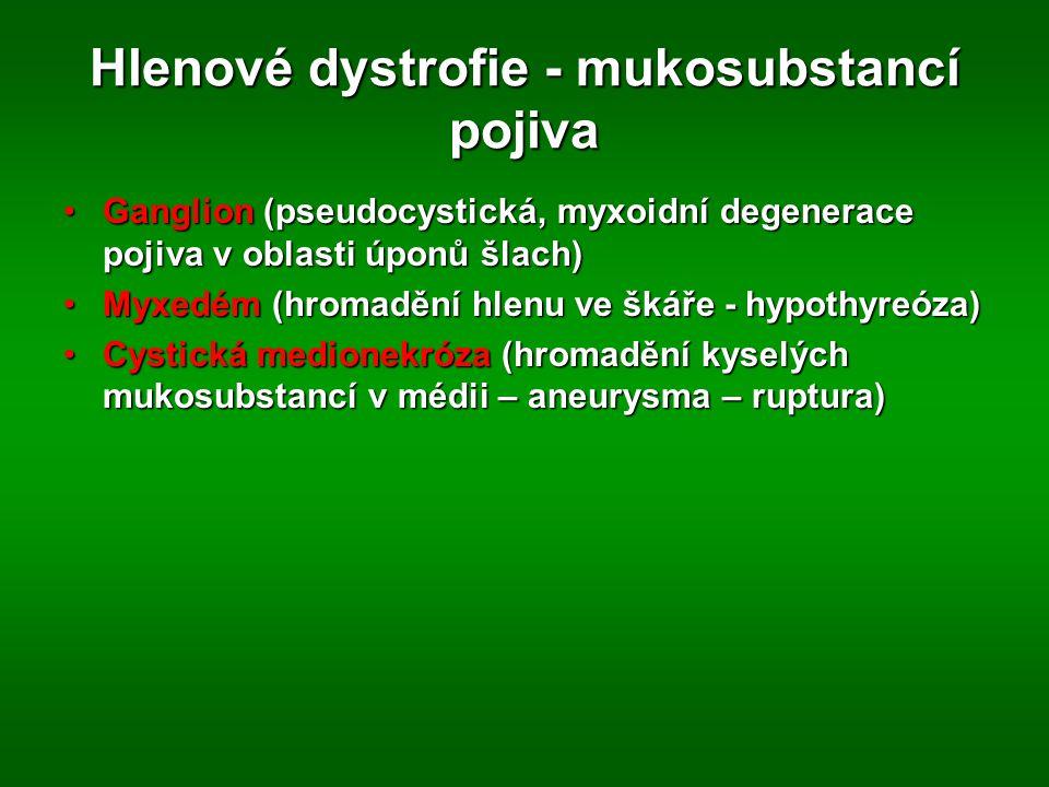 Hlenové dystrofie - mukosubstancí pojiva Ganglion (pseudocystická, myxoidní degenerace pojiva v oblasti úponů šlach)Ganglion (pseudocystická, myxoidní degenerace pojiva v oblasti úponů šlach) Myxedém (hromadění hlenu ve škáře - hypothyreóza)Myxedém (hromadění hlenu ve škáře - hypothyreóza) Cystická medionekróza (hromadění kyselých mukosubstancí v médii – aneurysma – ruptura)Cystická medionekróza (hromadění kyselých mukosubstancí v médii – aneurysma – ruptura)