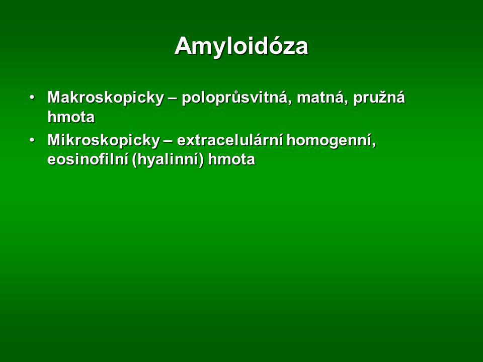 Amyloidóza Makroskopicky – poloprůsvitná, matná, pružná hmotaMakroskopicky – poloprůsvitná, matná, pružná hmota Mikroskopicky – extracelulární homogenní, eosinofilní (hyalinní) hmotaMikroskopicky – extracelulární homogenní, eosinofilní (hyalinní) hmota