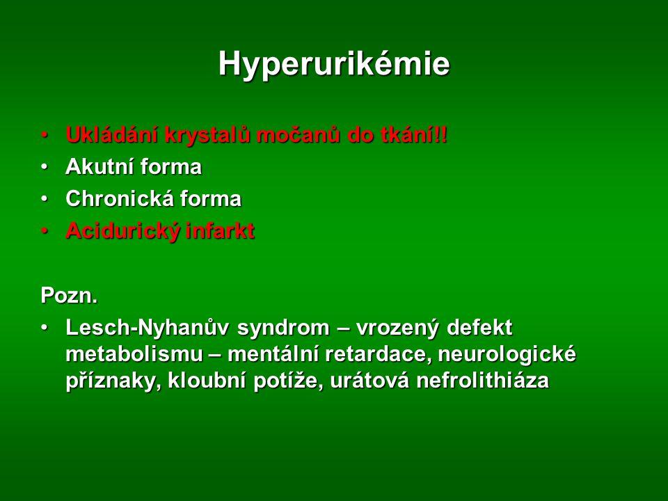 Hyperurikémie Ukládání krystalů močanů do tkání!!Ukládání krystalů močanů do tkání!.