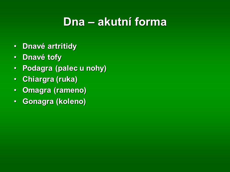 Dna – akutní forma Dnavé artritidyDnavé artritidy Dnavé tofyDnavé tofy Podagra (palec u nohy)Podagra (palec u nohy) Chiargra (ruka)Chiargra (ruka) Omagra (rameno)Omagra (rameno) Gonagra (koleno)Gonagra (koleno)