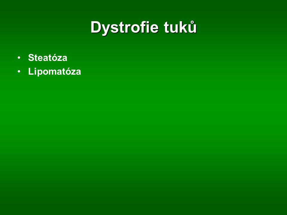 Dystrofie tuků Steatóza Lipomatóza