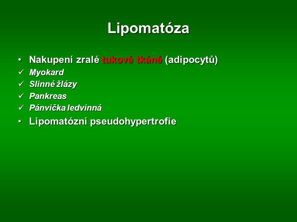 Lipomatóza Nakupení zralé tukové tkáně (adipocytů)Nakupení zralé tukové tkáně (adipocytů) Myokard Myokard Slinné žlázy Slinné žlázy Pankreas Pankreas Pánvička ledvinná Pánvička ledvinná Lipomatózní pseudohypertrofieLipomatózní pseudohypertrofie
