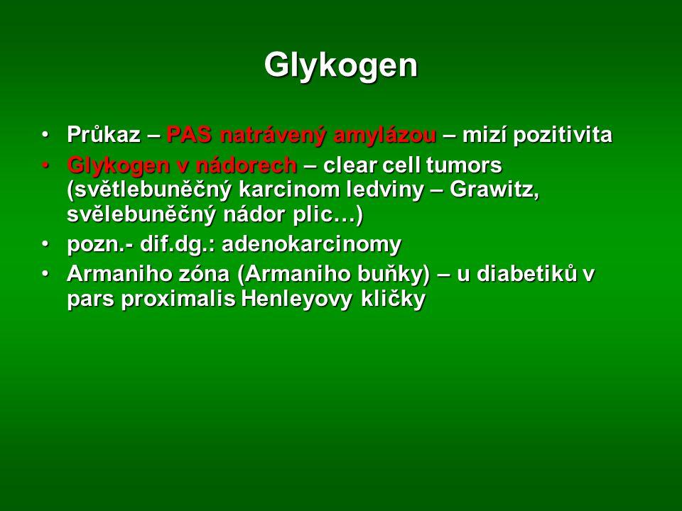 Glykogen Průkaz – PAS natrávený amylázou – mizí pozitivitaPrůkaz – PAS natrávený amylázou – mizí pozitivita Glykogen v nádorech – clear cell tumors (světlebuněčný karcinom ledviny – Grawitz, svělebuněčný nádor plic…)Glykogen v nádorech – clear cell tumors (světlebuněčný karcinom ledviny – Grawitz, svělebuněčný nádor plic…) pozn.- dif.dg.: adenokarcinomypozn.- dif.dg.: adenokarcinomy Armaniho zóna (Armaniho buňky) – u diabetiků v pars proximalis Henleyovy kličkyArmaniho zóna (Armaniho buňky) – u diabetiků v pars proximalis Henleyovy kličky