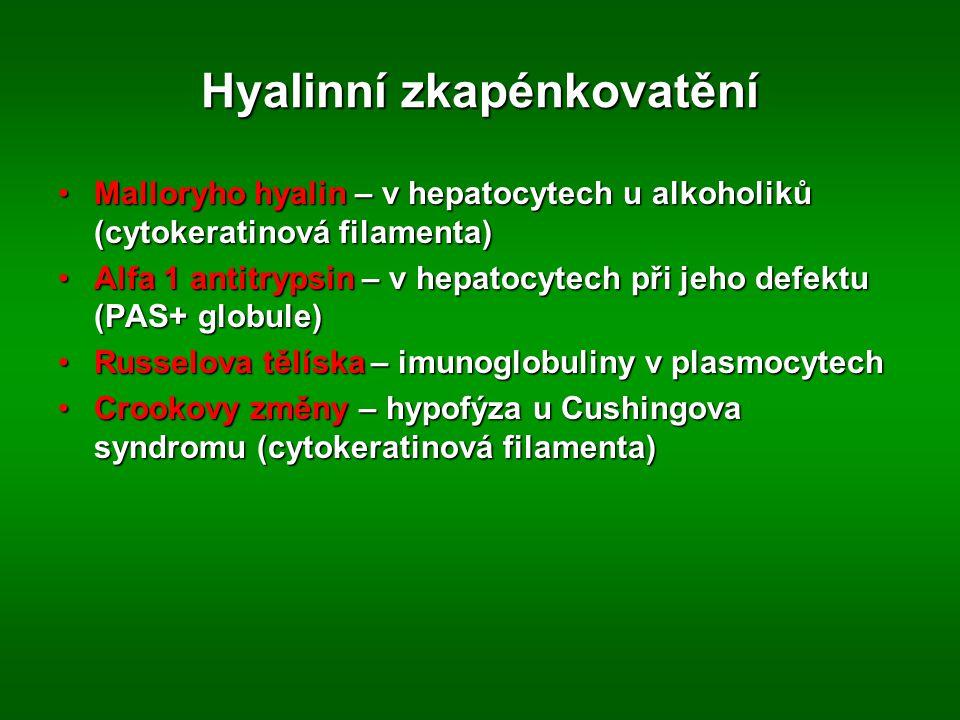 Hyalinní zkapénkovatění Malloryho hyalin – v hepatocytech u alkoholiků (cytokeratinová filamenta)Malloryho hyalin – v hepatocytech u alkoholiků (cytokeratinová filamenta) Alfa 1 antitrypsin – v hepatocytech při jeho defektu (PAS+ globule)Alfa 1 antitrypsin – v hepatocytech při jeho defektu (PAS+ globule) Russelova tělíska – imunoglobuliny v plasmocytechRusselova tělíska – imunoglobuliny v plasmocytech Crookovy změny – hypofýza u Cushingova syndromu (cytokeratinová filamenta)Crookovy změny – hypofýza u Cushingova syndromu (cytokeratinová filamenta)