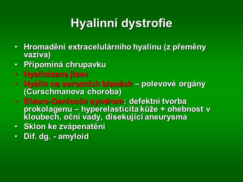 Hyalinní dystrofie Hromadění extracelulárního hyalinu (z přeměny vaziva)Hromadění extracelulárního hyalinu (z přeměny vaziva) Připomíná chrupavkuPřipomíná chrupavku Hyalinizace jizevHyalinizace jizev Hyalin na serozních blanách – polevové orgány (Curschmanova choroba)Hyalin na serozních blanách – polevové orgány (Curschmanova choroba) Ehlers-Danlosův syndrom: defektní tvorba prokolagenu – hyperelasticita kůže + ohebnost v kloubech, oční vady, disekující aneurysmaEhlers-Danlosův syndrom: defektní tvorba prokolagenu – hyperelasticita kůže + ohebnost v kloubech, oční vady, disekující aneurysma Sklon ke zvápenatěníSklon ke zvápenatění Dif.