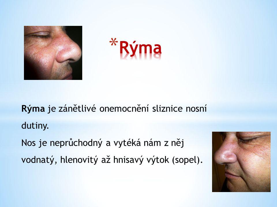Rýma je zánětlivé onemocnění sliznice nosní dutiny. Nos je neprůchodný a vytéká nám z něj vodnatý, hlenovitý až hnisavý výtok (sopel).