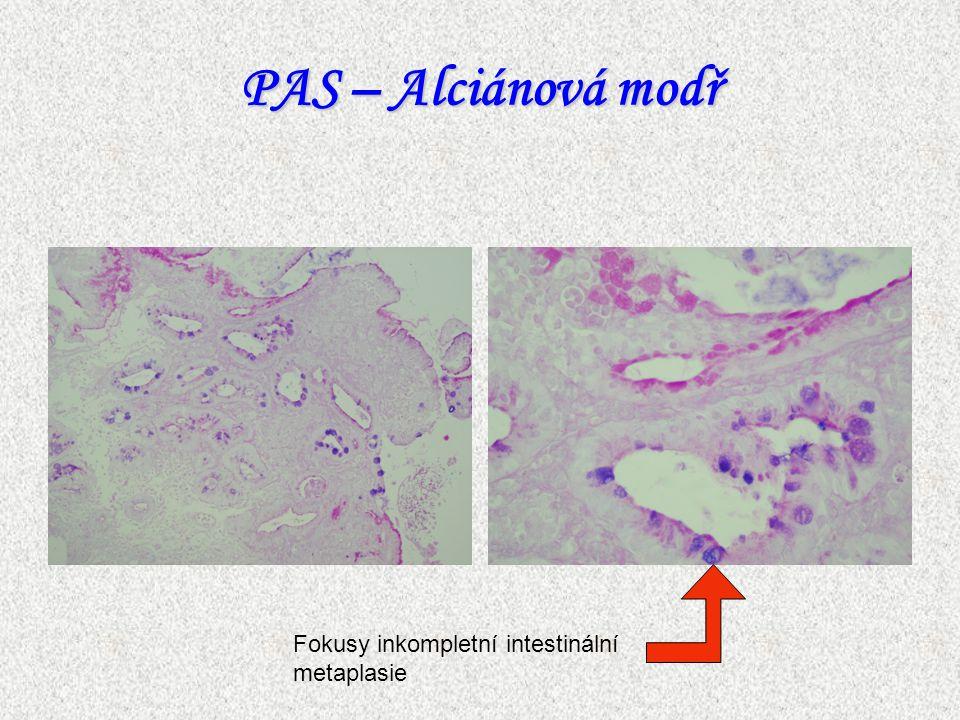 PAS – Alciánová modř Fokusy inkompletní intestinální metaplasie