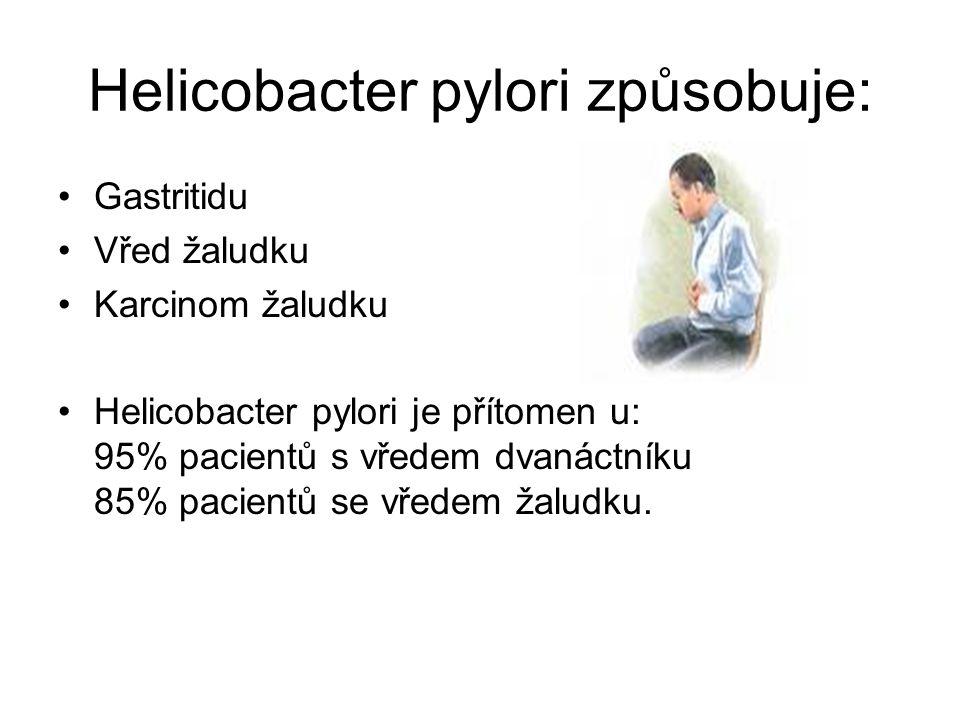 Helicobacter pylori způsobuje: Gastritidu Vřed žaludku Karcinom žaludku Helicobacter pylori je přítomen u: 95% pacientů s vředem dvanáctníku 85% pacie