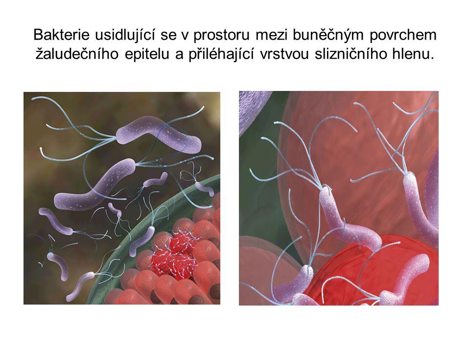 Látky, které narušují celistvost a funkci žaludeční sliznice.