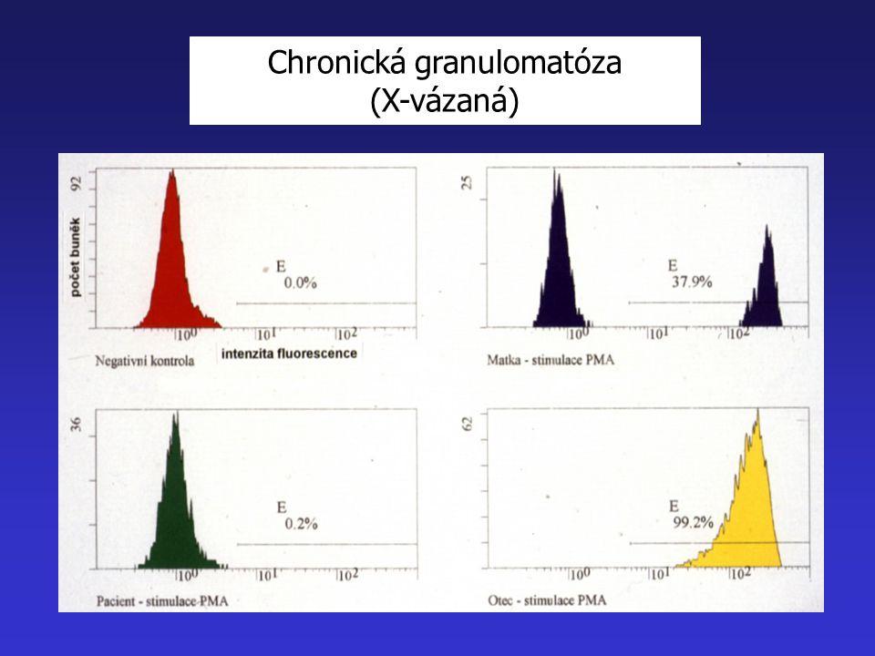 Chronická granulomatóza (X-vázaná)