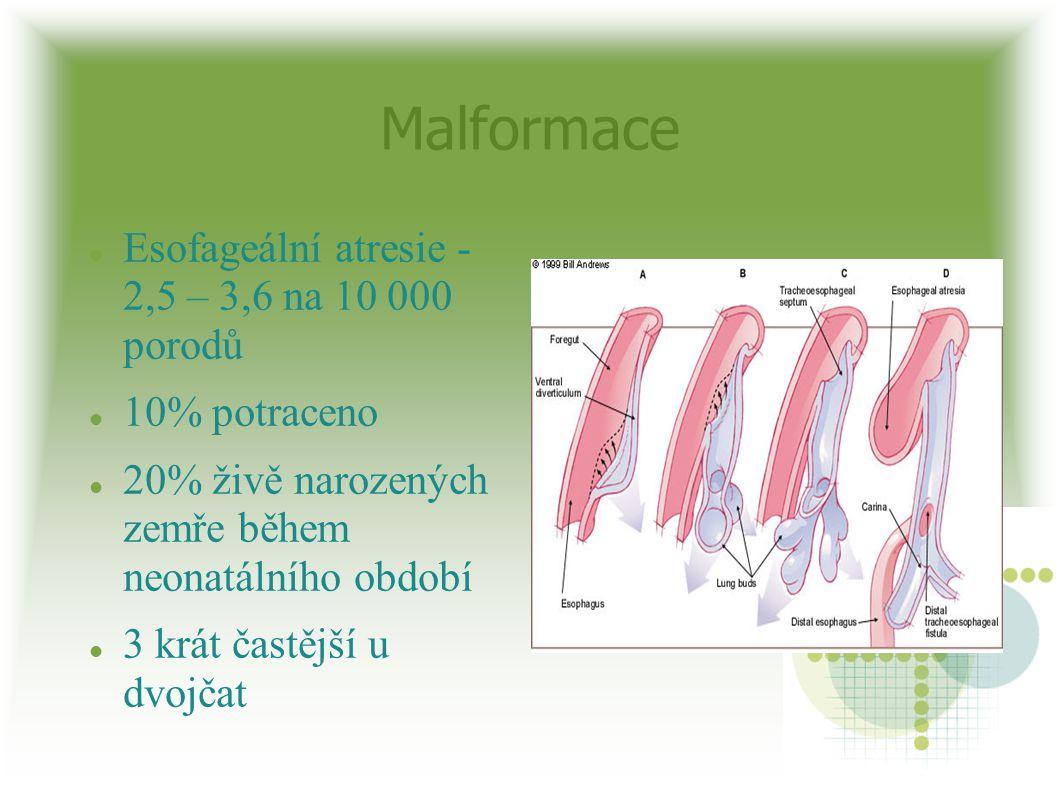 Malformace Esofageální atresie - 2,5 – 3,6 na 10 000 porodů 10% potraceno 20% živě narozených zemře během neonatálního období 3 krát častější u dvojča
