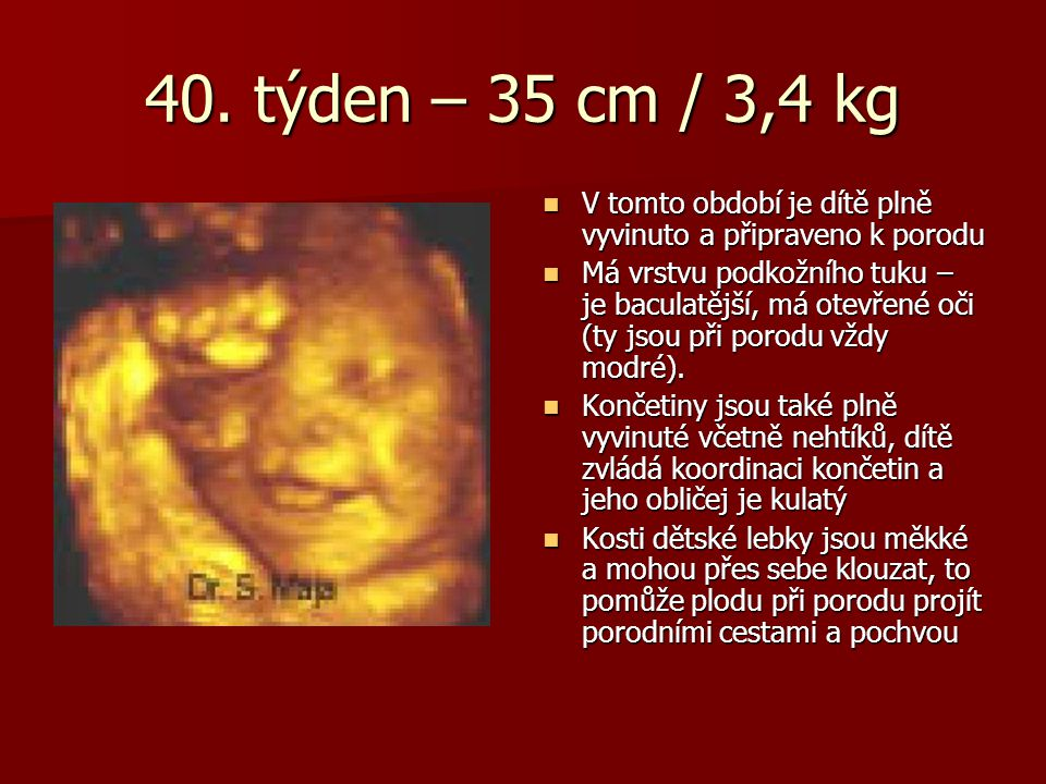 40. týden – 35 cm / 3,4 kg V tomto období je dítě plně vyvinuto a připraveno k porodu V tomto období je dítě plně vyvinuto a připraveno k porodu Má vr