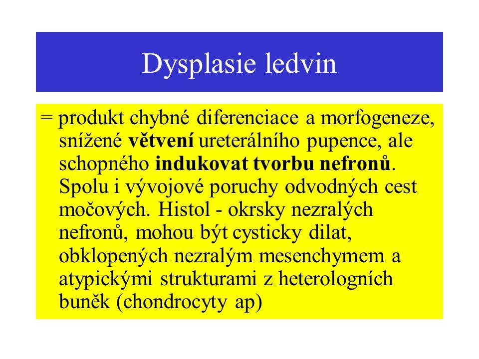 Cysty AD polycystóza ledvin (dospělí) Cysty rostou (až do 4 cm) a utlačují normální parenchym.