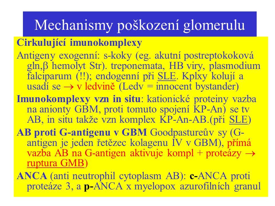 Mechanismy poškození glomerulu Cirkulující imunokomplexy Antigeny exogenní: s-koky (eg. akutní postreptokoková gln,  hemolyt Str). treponemata, HB vi