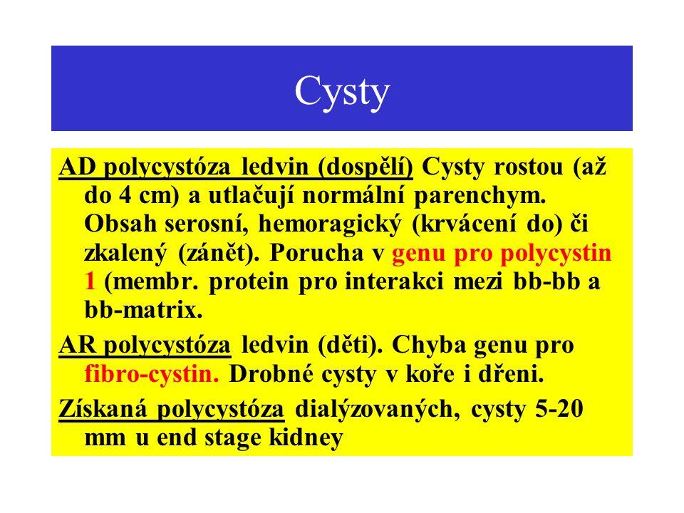 Cysty AD polycystóza ledvin (dospělí) Cysty rostou (až do 4 cm) a utlačují normální parenchym. Obsah serosní, hemoragický (krvácení do) či zkalený (zá
