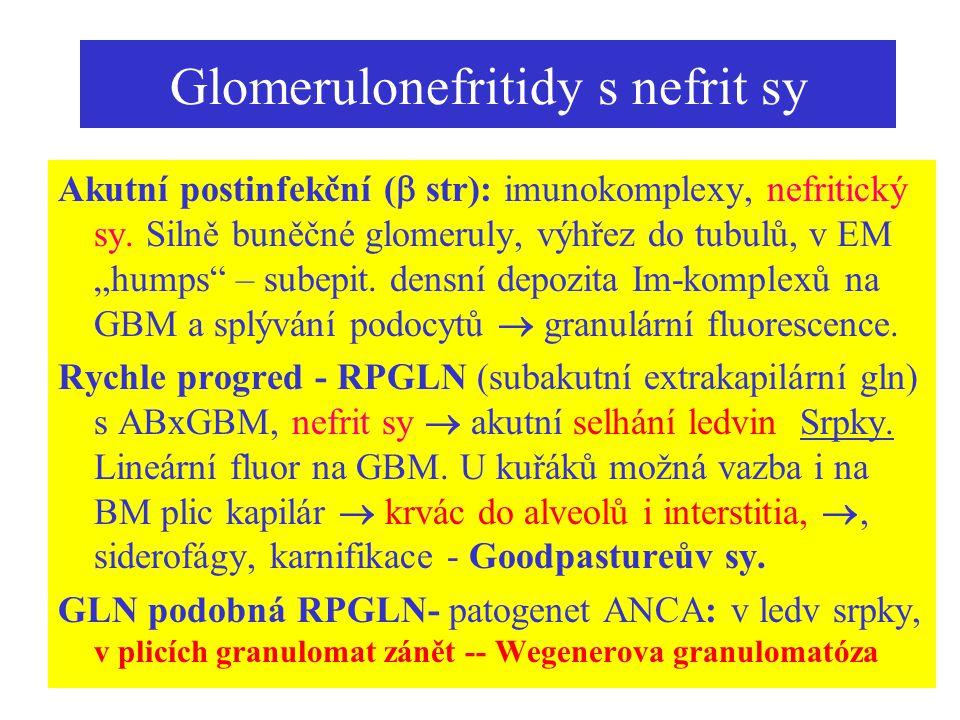 """Glomerulonefritidy s nefrit sy Akutní postinfekční (  str): imunokomplexy, nefritický sy. Silně buněčné glomeruly, výhřez do tubulů, v EM """"humps"""" – s"""