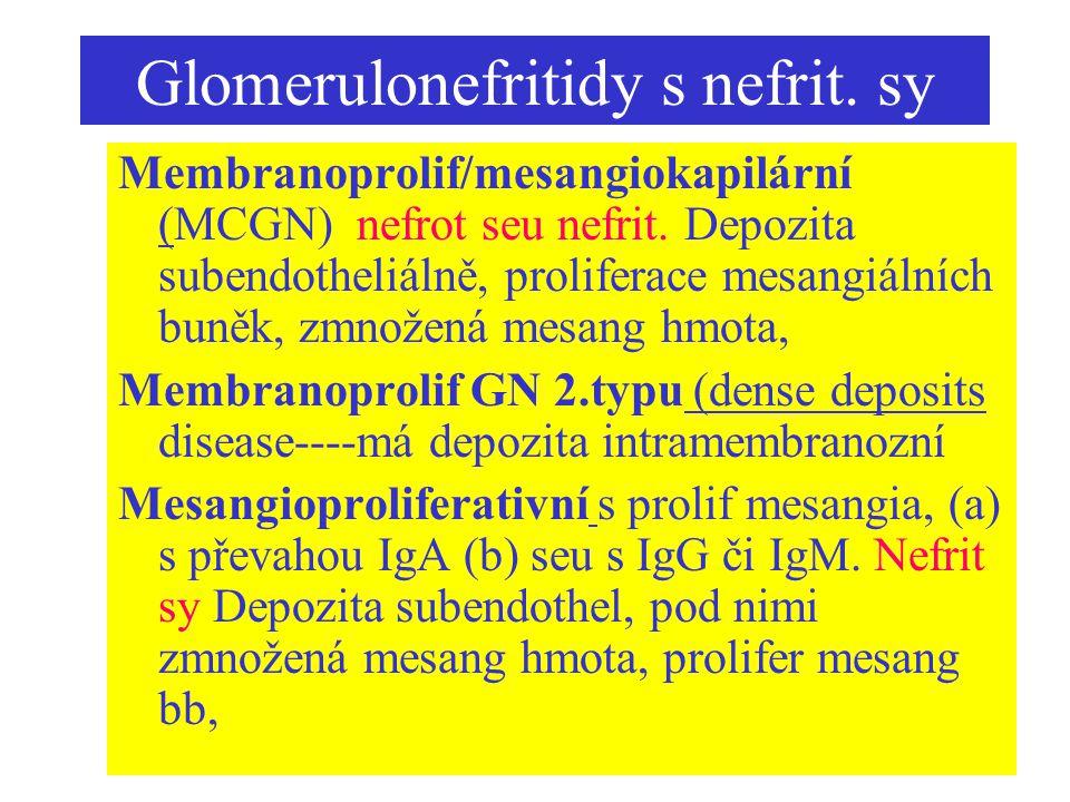 Glomerulonefritidy s nefrit. sy Membranoprolif/mesangiokapilární (MCGN) nefrot seu nefrit. Depozita subendotheliálně, proliferace mesangiálních buněk,