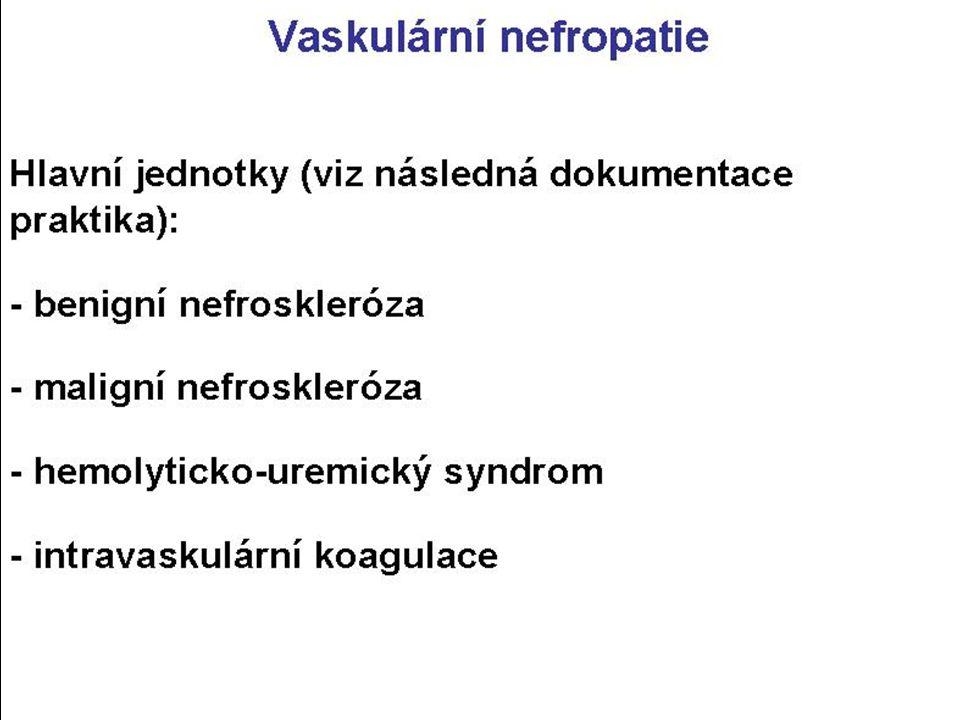 Vaskulární nefropatie Nscl ascl/aoloscl: Sklerotizace+ztluštění stěny u NSAS větví a ren, u NSAoloS aol aferent- ních a glomerulů při hypertenzi.