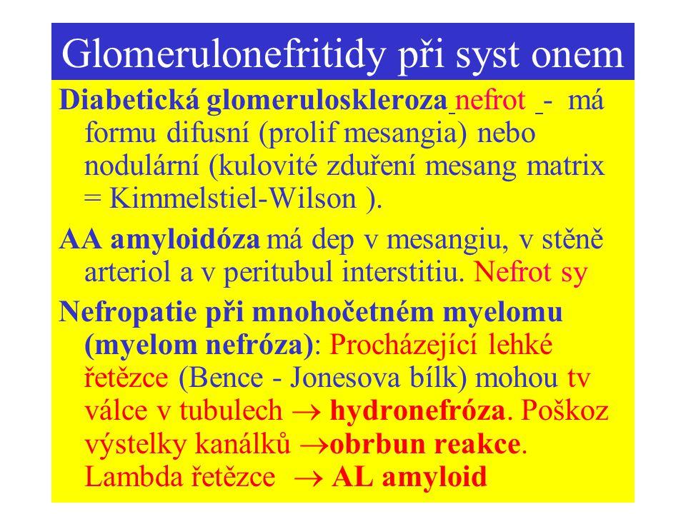 Glomerulonefritidy při syst onem Diabetická glomeruloskleroza nefrot - má formu difusní (prolif mesangia) nebo nodulární (kulovité zduření mesang matr