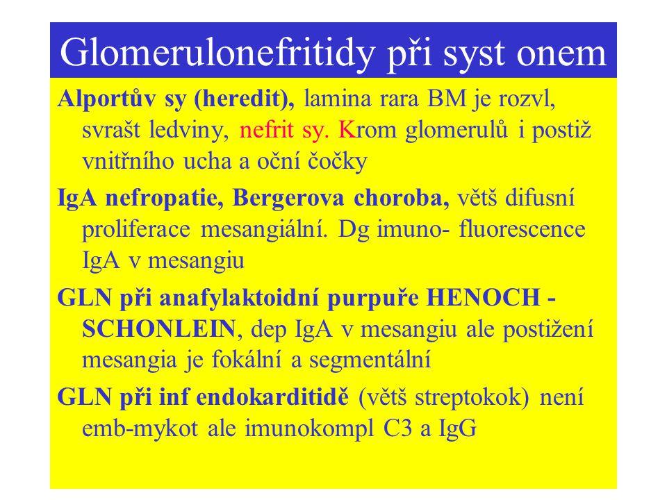 Glomerulonefritidy při syst onem Alportův sy (heredit), lamina rara BM je rozvl, svrašt ledviny, nefrit sy. Krom glomerulů i postiž vnitřního ucha a o