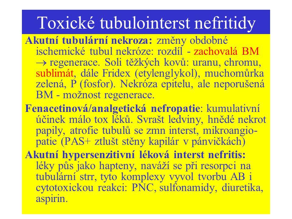 Toxické tubulointerst nefritidy Akutní tubulární nekroza: změny obdobné ischemické tubul nekróze: rozdíl - zachovalá BM  regenerace. Soli těžkých kov