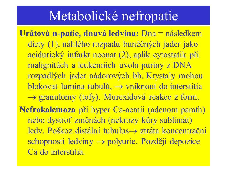 Metabolické nefropatie Urátová n-patie, dnavá ledvina: Dna = následkem diety (1), náhlého rozpadu buněčných jader jako acidurický infarkt neonat (2),
