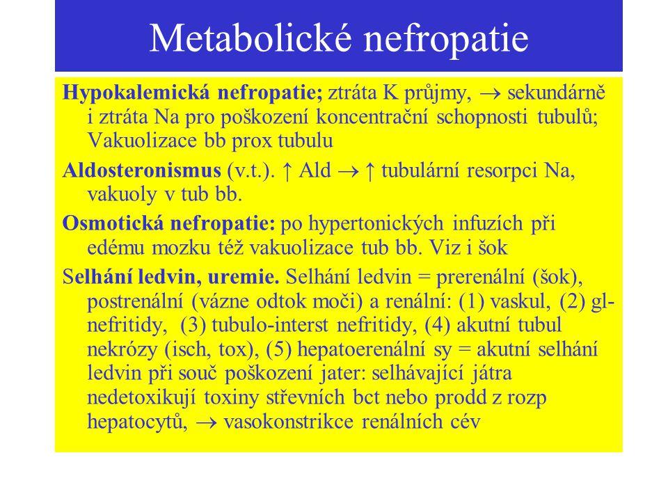 Metabolické nefropatie Hypokalemická nefropatie; ztráta K průjmy,  sekundárně i ztráta Na pro poškození koncentrační schopnosti tubulů; Vakuolizace b