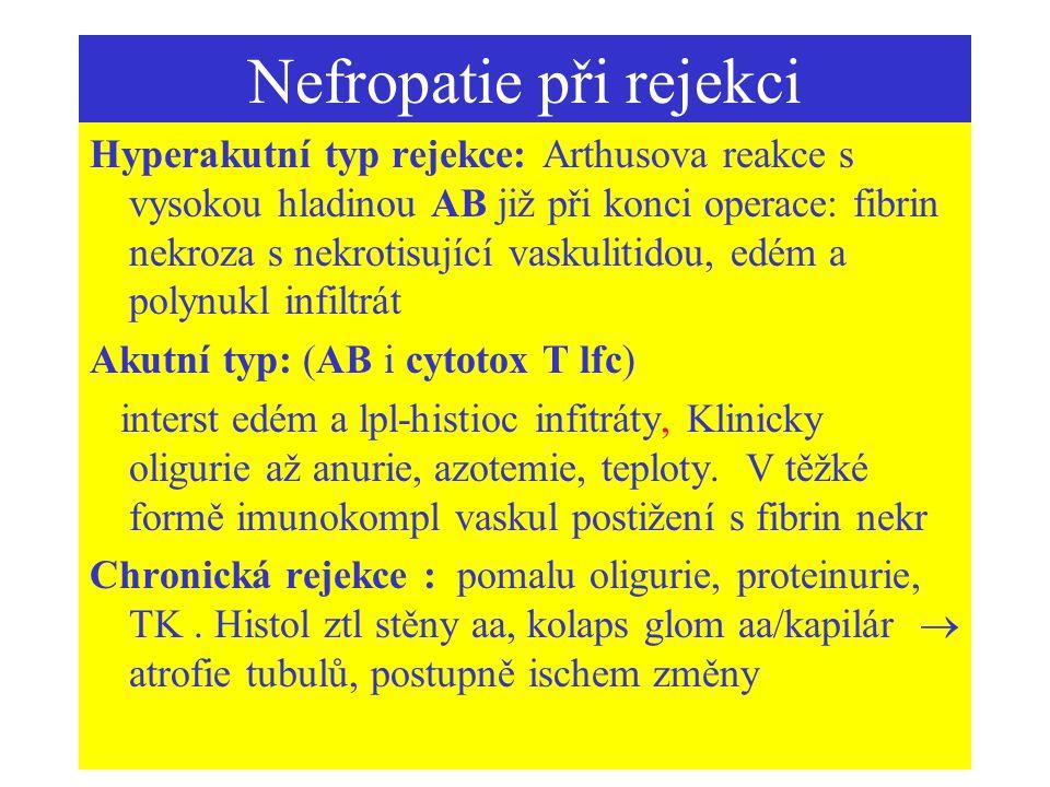 Nefropatie při rejekci Hyperakutní typ rejekce: Arthusova reakce s vysokou hladinou AB již při konci operace: fibrin nekroza s nekrotisující vaskuliti