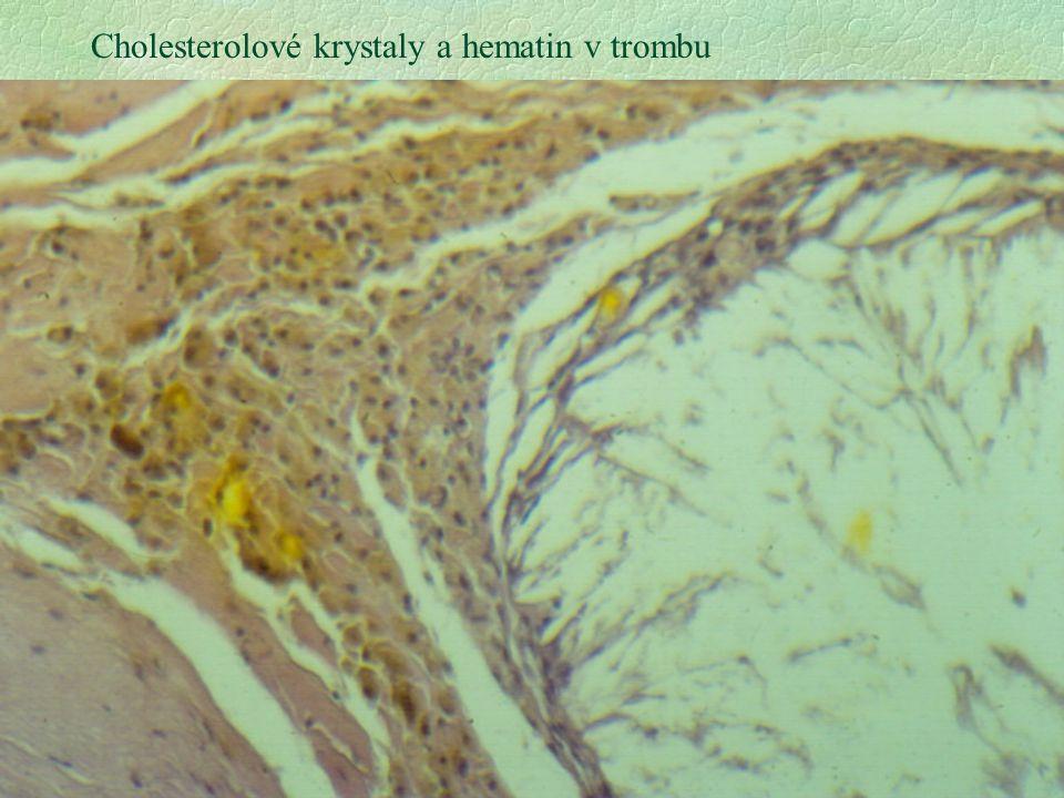 22 Cholesterolové krystaly a hematin v trombu