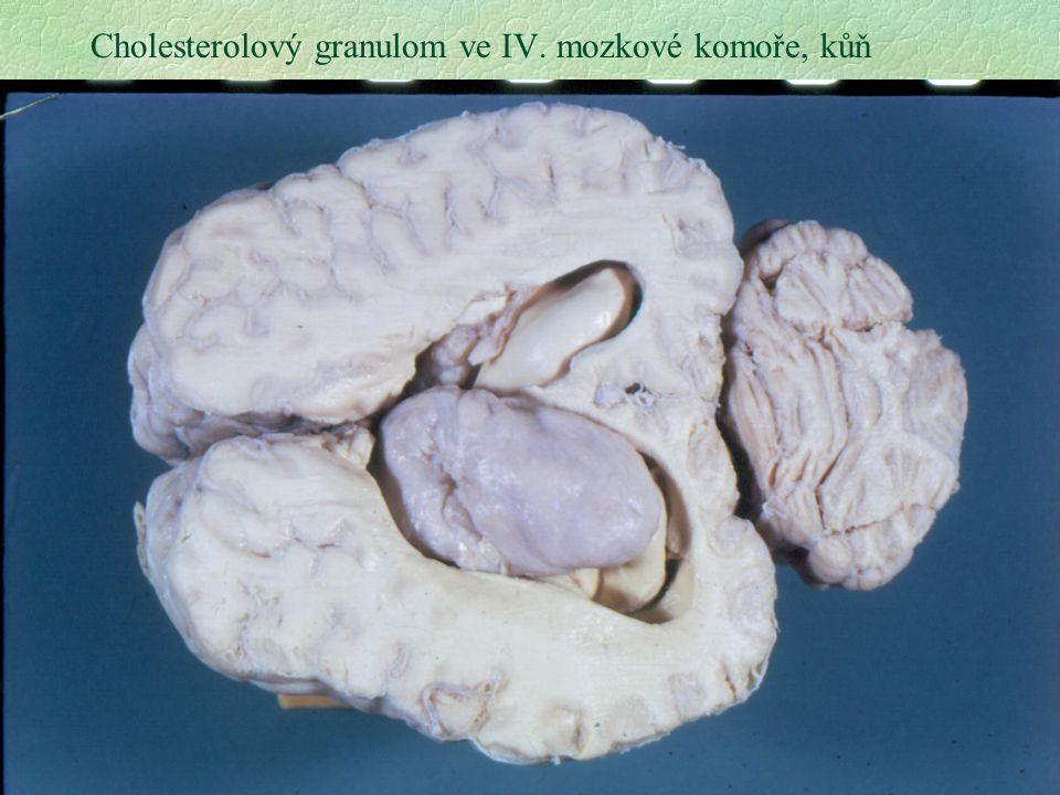 23 Cholesterolový granulom ve IV. mozkové komoře, kůň